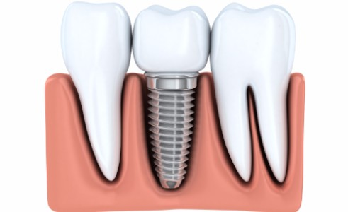 Dental Implants, Surrey Dentist